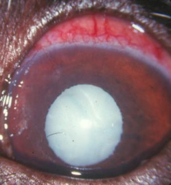 Glaucoma In Dogs Treatment Uk